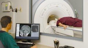 Глиома головного мозга - что это такое и прогноз жизни