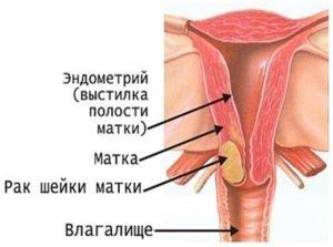 онкомаркер рака шейки матки