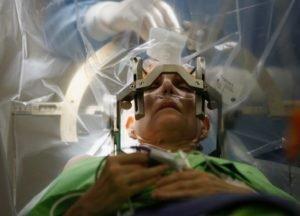 операция на головной мозг