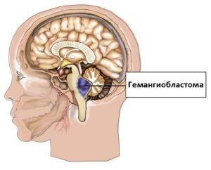 гемангиобластома
