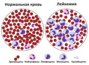 сравнение нормальной крови и лейкоза