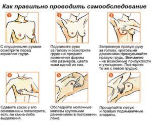 самостоятельное прощупывание груди