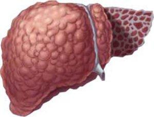 пораженная раком печень