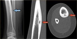 остеома на рентгене