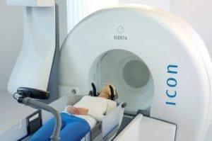 радиохирургия - метод лечения метастаз в голове