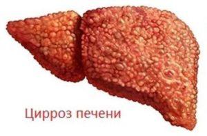Цирроз печени - возможная причина развития рака