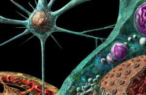 Саркома - опухоль из соединительной ткани