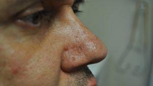 Ангиофиброма на лице у мужчины