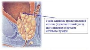 Рост аденомы предстательной железы
