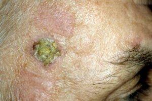 Плоскоклеточный рак кожи лица.