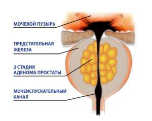 Вторая стадия аденомы предстательной железы