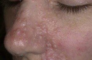 Трихоэпителиома носа у женщины