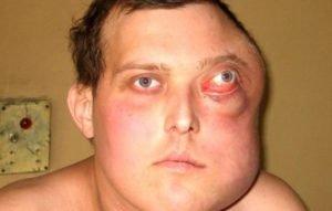 Мужчина с лимфомой Беркитта