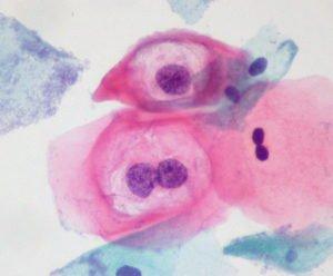 Атипичные клетки