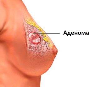 Аденома молочной железы - причины и прогноз