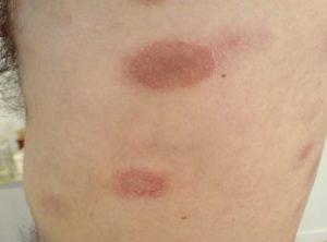 саркоидоз кожи