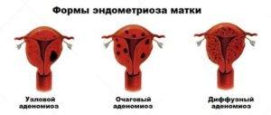 Аденомиоз диффузная форма 1 степени