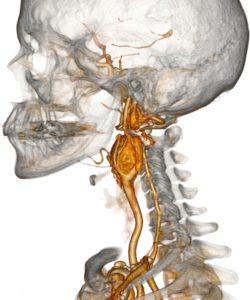 Параганглиома головы и шеи
