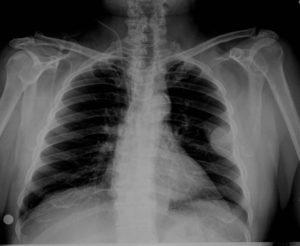 Плазмоцитома кости
