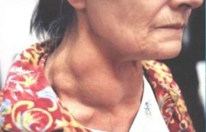 Медуллярный рак щитовидной железы у женщины фото