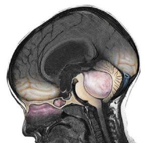 Медуллобластома в черве мозжечка