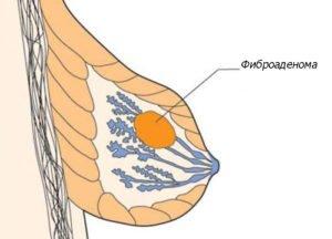 Фиброзная аденома грудной железы