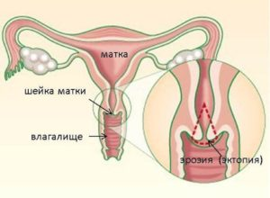 Эктопия шейки матки
