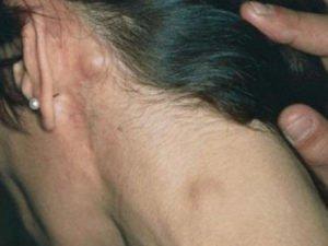 Фолликулярная (нодулярная) лимфома