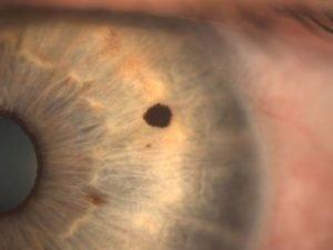 Пигментные пятна (невусы) на глазной оболочке