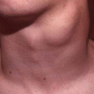 На фото папиллярная карцинома щитовидной железы