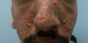 Ангиофиброма лица