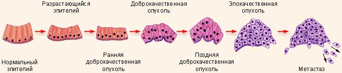 Рост опухоли