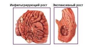 Экспансивный и инфильтративный рост опухоли