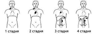 Четыре стадии заболевания
