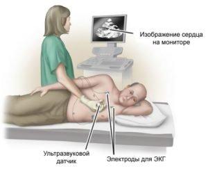 Трансторакальная эхокардиография
