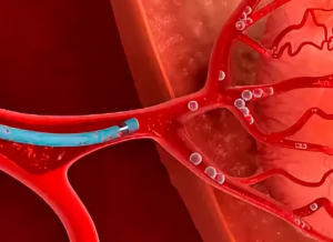 эмболизация артерий