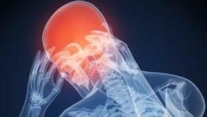Головная боль при медуллобластоме
