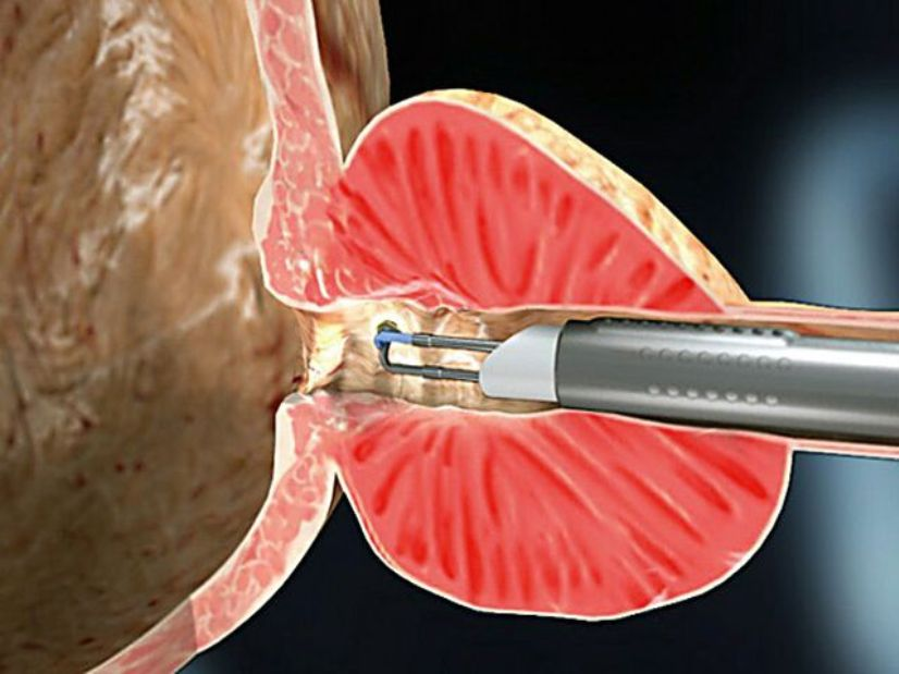 трансуретральная резекция простаты при гиперплазии