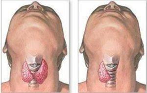 Тиреоидэктомия щитовидной железы. До и после операции.