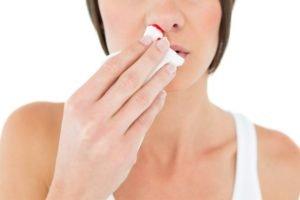 Кровотечении из носа
