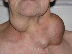 Метастазы в шейных лимфатических узлах