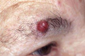Карцинома на лице у мужчины