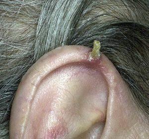 кожный рог на ухе