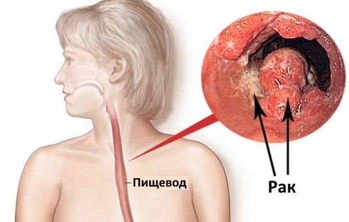 Что такое рак пищевода