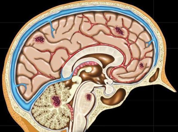 Кавернома головного мозга