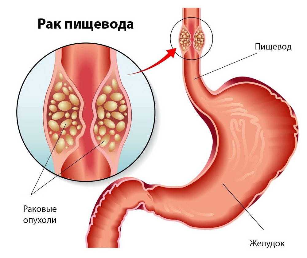 Рак пищевода составляет около 5-7 % всех случаев онкологии в мире.