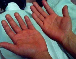 проявления эритремии
