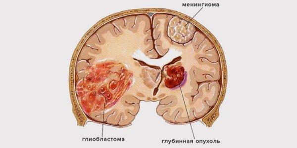 Виды рака головного мозга