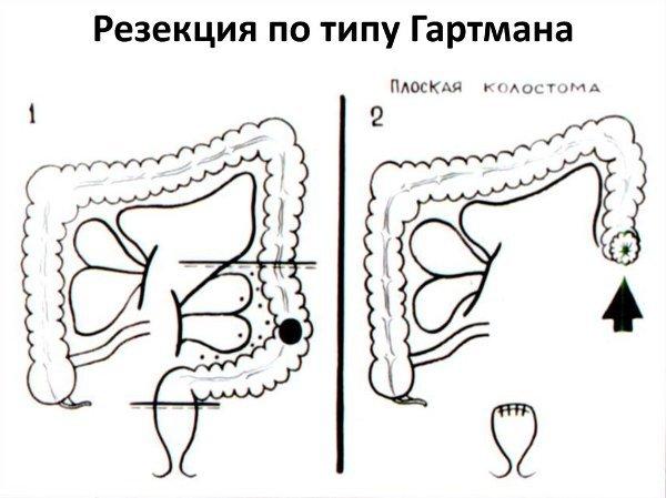 Операция Гартмана