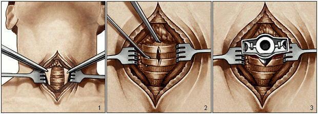 Трахеостомия этапы операции